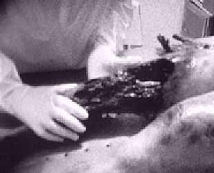 autopsy scene